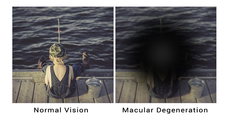 Keeping Sight Of Age Related Macular Degeneration Dunn